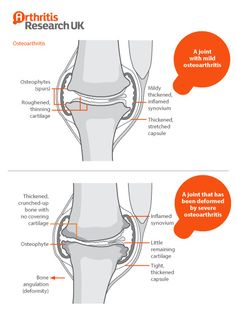 A joint with osteoarthritis by Arthritis Research UK, via Flickr