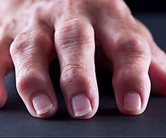What Causes Psoriatic Arthritis?