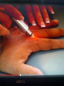 Laser Therapy To Stop Smoking