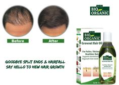Choose to go in for a natural solution with 'Indus Valley Bio Organic Hair Care Oil' if you happen to be on the lookout for the best soluti. Argan Oil Uses For Hair, Argan Oil Hair, Hair Growth For Men, Hair Growth Oil, Argan Oil Skin Benefits, Growing Out Hair, Hair Care Oil, Best Hair Oil, Organic Hair Care