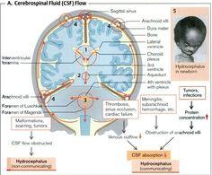 cerebrospinal fluid flow