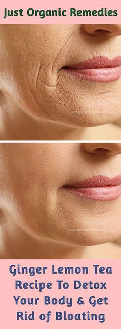 Wrinkles are the first sign of aging and they sure affect our self-esteem. Remember, it is really hard to treat deep wrinkles, as it takes more time and patience. #wrinkles