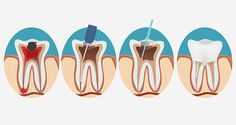 Get wise to the links between root canals and cancer and some safe oral hygiene tips for keeping your entire system strong and cancer-free.