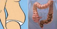 """YOU ARE NOT FAT – YOU HAVE """"POO"""" STUCK IN YOUR BODY! HERE IS HOW TO ELIMINATE IT INSTANTLY"""