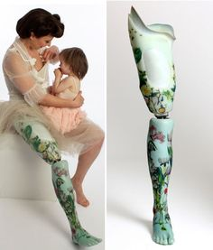 Prosthetic Limbs That Are Works Of Art