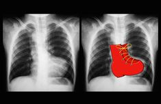 A 'boot-shaped' heart is the description given to the appearance of the heart on plain film in some cases of Tetralogy of Fallot. It describes the appearances of an upturned cardiac apex due to right ventricular hypertrophy and a concave pulmonary arterial segment. http://radiopaedia.org/articles/boot-shaped-heart