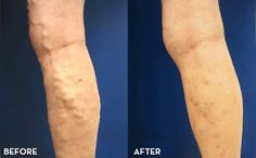 #varicose #vein treatments - http://www.usaveinclinics.com/
