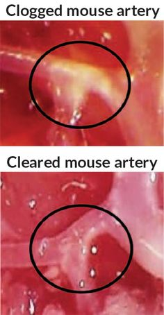 Mice fed high-fat diets had arteries clogged with yellow, fatty plaques. Animals treated with an anti-inflammatory nanoparticle had more effective plaque clearing (bottom) than did mice given a version of the nanoparticle without the drug (top).
