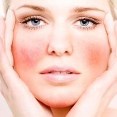 DIY Rosacea Remedies ~ Treating Broken Capillaries And Redness Naturally Rosacea Remedies, Skin Care Remedies, Redness On Face, Anti Redness, Tips & Tricks, Homemade Face Masks, Tips Belleza, Health And Beauty, Beauty
