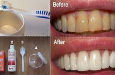 Remove Plaque And Treat Gum Disease Without Any Expensive Treatments!
