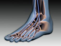 Celiac disease and gluten sensitivity both are linked to peripheral neuropathy, which is nerve damage that causes numbness and quot;pins and needles. Peripheral Neuropathy, Jaipur, Cure, Nerve Problems, Neuropathic Pain, Dads, Diabetic Neuropathy