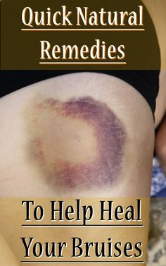 quick natural remedies to help heal your bruises