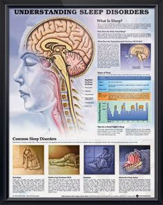Understanding Sleep Disorders anatomy poster describes the five phases of sleep and outlines common sleep disorders. Neurology chart for doctors and nurses.