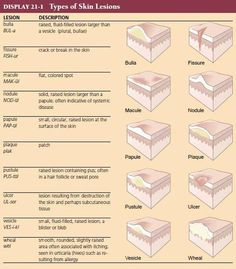 Types of Skin Lesions(Medical Terminology- An Illustrated Guide)