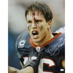Brian Cushing Autographed/Hand Signed Houston Texans ''Bloody''