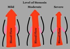 Aortic Stenosis Valve - doctor says mine is severe. Posterior Vitreous Detachment, Bicuspid Aortic Valve, Aortic Valve Replacement, Aortic Stenosis, Medical Coding, Medical Science, Heart Valves