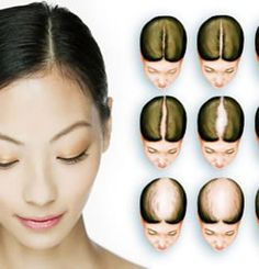 Taking proper care and providing nourishment are the best way to stop receding hairline quickly. To prevent and treat bald spots, naturally made home remedies like aloe vera, olive oil, egg, green tea and honey can also be helpful. These tips can be used by both men and women to increase hair growth and make follicles healthy.