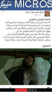 جرحى النظام يناشدون رأس النظام بشار الاسد لإنصافهم