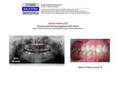 Casi clinici ortodontici Canino incluso in eruzione spontanea http://www.studiodentisticobalestro.com/2015/05/canino-incluso.html