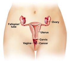 Treat Pelvic Cancer Most Effective Ways to Treat Pelvic Cancer