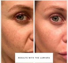 Nuskin Nu Skin Ageloc LumiSpa Normal/Combo Kit Brand New w/ Sealed   eBay Skin Products, Pure Products, Nu Skin Ageloc, Smooth Skin, Oily Skin, Beauty Secrets, Wifi, Smartphone, Skincare