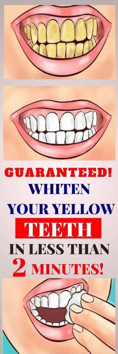Top Oral Health Advice To Keep Your Teeth Healthy. The smile on your face is what people first notice about you, so caring for your teeth is very important. Unluckily, picking the best dental care tips migh Teeth Whitening Remedies, Natural Teeth Whitening, Whitening Kit, Health Remedies, Home Remedies, Natural Remedies, Headache Remedies, Natural Skin, Natural Health
