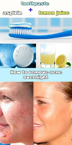 How to remove acne overnight