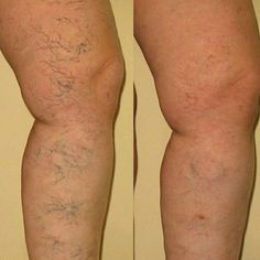 Yet another #amazing thing #Nerium can help bring out that #beautiful #skin of yours!  #neriumischanginglives #confidenceisbeauty #neriumlife #neriumfirm #byebyespiderveins #EHT #realpeople #realresults   dowens12.nerium.com Facebook.com/danaowens.nerium