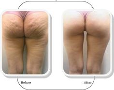 Beauty & Passion: Cellulite: exercises to eliminate it