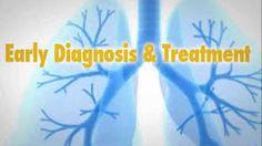 pulmonary hypertension associaiotn - YouTube