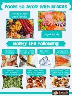 Braces Food, Braces Tips, Dental Braces, Teeth Braces, Kids Braces, Foods To Avoid, Foods To Eat, Cauliflower Chips, Getting Braces