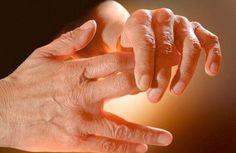 Les causes des fourmis dans les mains et les jambes