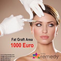 Fat Graft