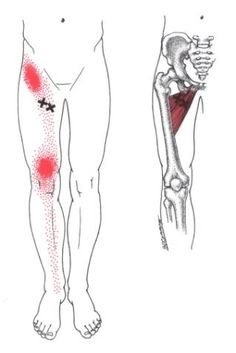 Kurzer und langer Schenkelanzieher | The Trigger Point & Referred Pain Guide