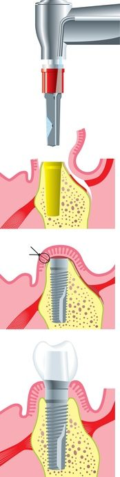 #Künstliche #Zahnwurzeln haben eine lange Geschichte:: http://www.zahn-zahnarzt-berlin.de/deutsch/news/kuenstliche-zahnwurzeln.html