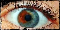 Wicked Things Horror Blog: Its Monday - Medical Oddities.  I was born with a brown spot like this in my eye. What does it mean?