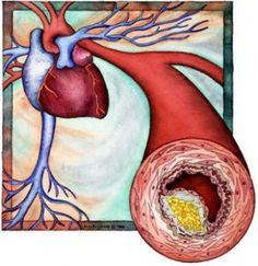 Tratamiento para el colesterol alto