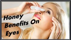 honey benefits on eyes!how to use honey for eyes!Top 11 Benefits Of Honey For Healthy Eyes. All these problems can be well treated by using honey. Ocular Rosacea, Skin Shades, Honey Benefits, Skin Growths, Healthy Eyes, Eye Drops, Raw Honey, Stretch Marks, Homemade Beauty