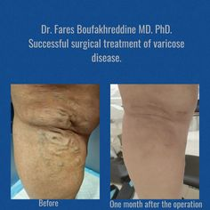 Successful treatment of varicose disease. Before and after.  Dr. Fares Boufakhreddine MD. PhD.