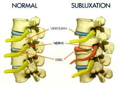 Subluxation, in general, refers to misalignment of the spine and its impact on nerves. The medical model of subluxation and the chiropractic one differ. Síndrome De Ehlers Danlos, Ehlers Danlos Syndrome Types, Elhers Danlos Syndrome, Family Chiropractic, Chiropractic Wellness, Chiropractic Center, Chiropractic Office, Chronic Migraines, Chronic Pain