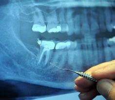 97% de los enfermos oncológicos terminales anteriormente tenían Este procedimiento dental | World Truth.TV