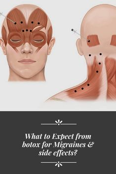 What To Expect From Botox For Migraines & Side Effects?Botox is available in the market to cure different conditions. Usually, it is known that Botox is just used to reduce your facial wrinkles and fine lines, but this is not all. Botox is used for m Botox Before And After, Aesthetic Dermatology, Facial Aesthetics, Botox Fillers, Aesthetic Clinic, Botox Injections, Facial Rejuvenation, Moisturizer For Oily Skin, Botox Migraine