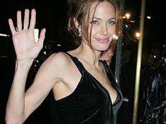Cinemed: ¿Angelina Jolie necesita un trasplante hepático?