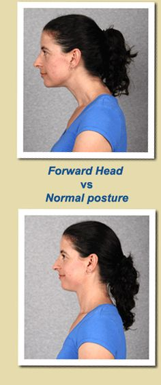 Forward head posture has been linked to tension-type headaches as well as increased blood pressure,disc herniations, arthritis, pinched nerves, abnormal functions of the eyes and the ears, and psychological disorders.