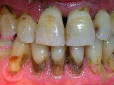Lack of proper oral hygiene is the main contributing factor to periodontal disease. With proper oral care daily, and professional cleanings from your local Bridgeview dentist can Gingivitis be reversed Home Remedies, Natural Remedies, Aloe Vera For Face, Oven Baked Chicken Parmesan, Health And Wellness, Health Fitness, Coffee And Cigarettes, Oral Hygiene, Dental Care