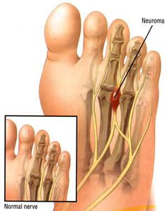 Does it feel like you have a pebble in your shoe between your 3rd and 4th toes?  Perhaps you have occasional shooting or burning pain in the bottom of your foot?  Do your 3rd or 4th toes occasionally sting or feel numb?  Any of these could be symptoms of Morton's Neuroma, a painful thickening of the tissue around the nerves that lead to your toes.