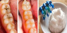 Reverse Cavities Naturally in 5 Steps