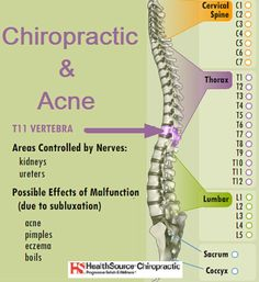 A chiropractic approach to acne looks at the lifestyle of an individual as well as to optimize the function of his/her nervous system. The nervous system plays an important role in the production of cortisol in the body.  Cortisol helps to reduce inflammation caused by infections as well as help to boost the immune system.  When nerve pressure is removed with an adjustment by a chiropractor, the immune system can better handle infections and foreign bacteria on the body. Call (952) 943-2584