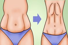 A major issue for most women is saggy stomach skin. Whether it's caused by drastic weight loss or by pregnancy, saggy skin on your stomach Perder 10 Kg, 7 Workout, Lose Weight, Weight Loss, Lose Fat, Unwanted Hair, Unwanted Facial, Healthy Beauty, Healthy Food