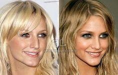 Image result for plastic surgery before and after face